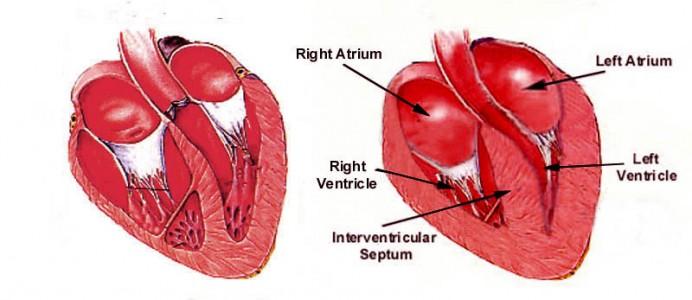Hypertrophic_Cardiomyopathy_Dia